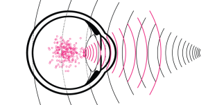 A diagram of an eyeball with overlapping pink and black waves
