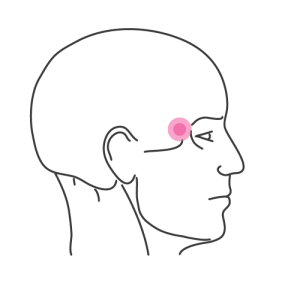 A drawn diagram of a side view of a man's head. A pink coloured circle marks the temple area.